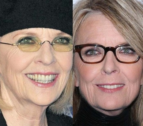 Diane Keaton Get Plastic Surgery | Celebrity Plastic Surgery | Scoop.it