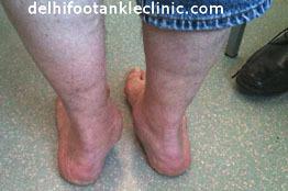 Calcaneal Fracturein India   medical   Scoop.it