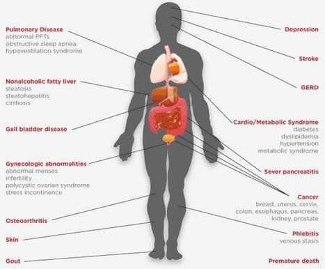Chirurgie obésité (bariatique) en Tunisie | Chirurgie Obésité en Tunisie | Scoop.it