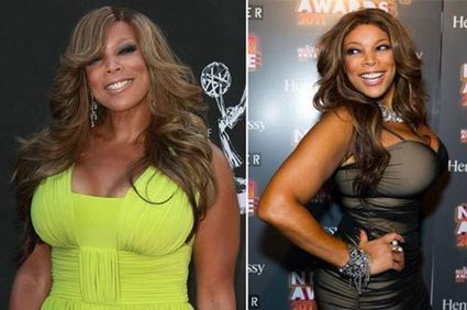 Wendy Williams Plastic Surgery Before & After | Celebrity Plastic Surgery | Scoop.it