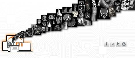 PACS Y TELERADIOLOGIA DE MEXICO | LA TELERADIOLOGIA COMO AYUDA DIAGNOSTICA | Scoop.it
