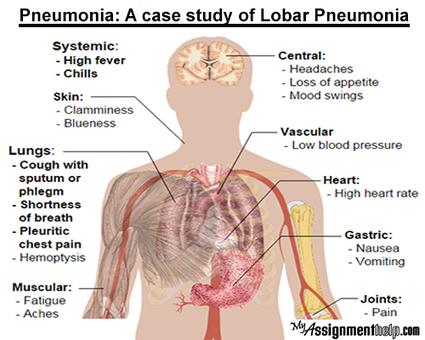 Pneumonia: A case study of Lobar Pneumonia | Assignment Help -Australia, UK & USA | Scoop.it