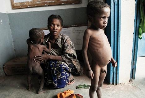La malnutrition des enfants, bombe à retardement pour Madagascar - Le Journal de l'île de la Réunion | DAF Sharing - AFRIQUE  économie & finance | Scoop.it