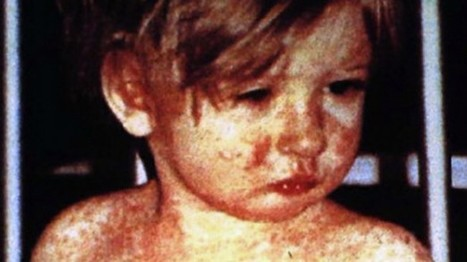 Measles cases hit 18-year high in Washington state | Daily Crew | Scoop.it