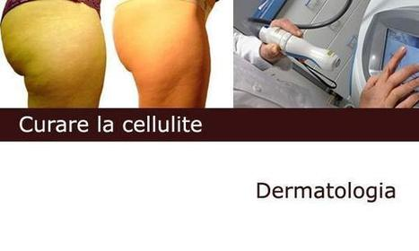 Laser lipolisi per sconfiggere la cellulite | Salute, benessere,stare bene | Scoop.it