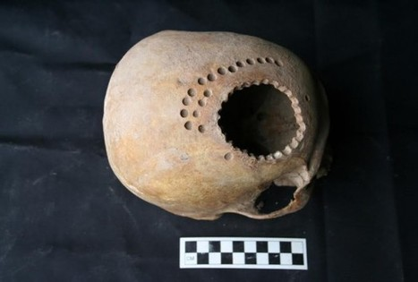Peruvians Experimented With Brain Surgery 1000 Years Ago - RedOrbit | Ancient Origins of Science | Scoop.it