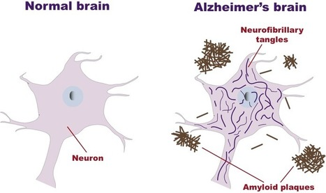 Neuroinflammation in Alzheimer's disease | Nurse Innovators | Scoop.it