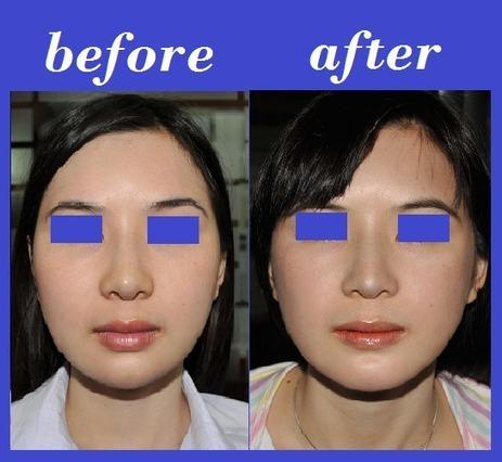 Cheekbone Photos Thailand | Bangkok Aesthetic Surgery Center | The Best Plastic Surgery Clinic In Thailand | Scoop.it
