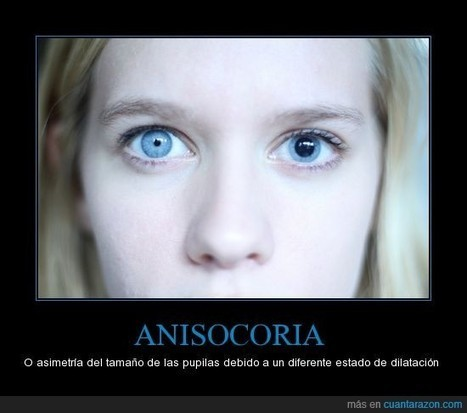 ANISOCORIA | Salud Visual 2.0 | Scoop.it