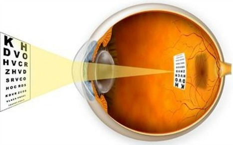 Descubren nuevos genes para identificar la miopía | Salud Visual 2.0 | Scoop.it