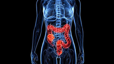 Colon cancer rates rising in people under 50 | Cancer - Advances, Knowledge, Integrative & Holistic Treatments | Scoop.it