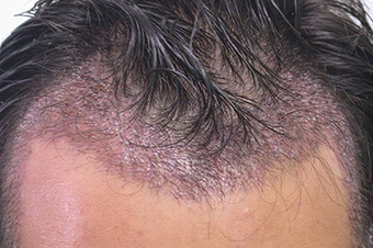 Things should be paid attention after Hair Transplantation | Hair Transplantation Turkey | Scoop.it