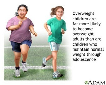 How Positive Parenting During Early Childhood May PreventObesity | child obesity | Scoop.it