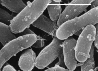Des nouvelles chez les bactéries photosynthétiques | loubna oum | Scoop.it