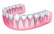Dental Implants - Winning Smiles Dental Surgery | dentistry | Scoop.it