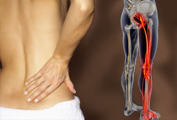 Massage Therapy for Sciatica - Forest Hill St. Clair West Toronto | Pain Relief | Scoop.it