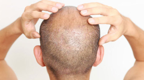 Stem cells could be used to cure balding | QoL Technology: e-Health | Scoop.it