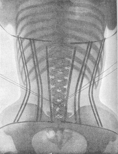 The Corset X-Rays of Dr Ludovic O'Followell (1908) | The Public ... | RADTCenturyCollege | Scoop.it