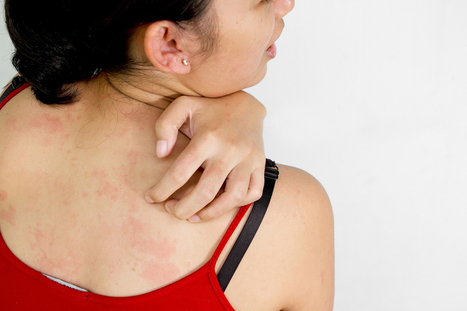 The Science Behind an Itch | DiscoverMagazine.com | Stuff I found...interesting! | Scoop.it