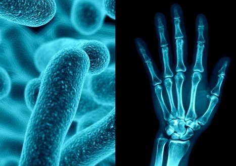 Joint Pain, From the Gut | Osteoporosis New drugs Review | Scoop.it