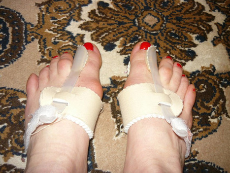 Hogyan TŰNTESSÜK EL A BÜTYKÖKET műtét nélkül?! - Women's Health | SHOPING ONLINE | Scoop.it