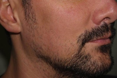 Hipster Wannabes Resort to Facial Hair Transplants to Get Coveted Look | Strange days indeed... | Scoop.it