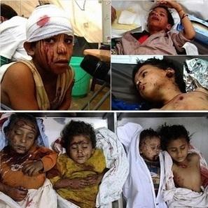 NO es SIRIA - Unicef: 'Ofensiva Saudí ha dejado 2771 Niños Asesinados y Heridos en Yemen' | La R-Evolución de ARMAK | Scoop.it