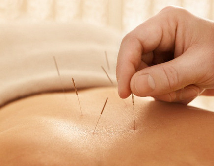 Acupuncture May Offer Real Relief for Chronic Pain | TIME.com | Acupuncture News | Scoop.it