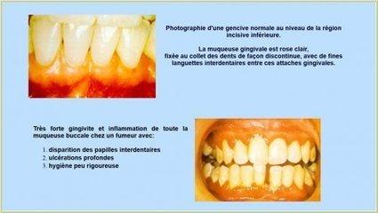 Gingivites et tabagisme | Toxique, soyons vigilant ! | Scoop.it