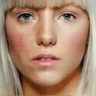 Best foundation for acne prone skin   the best foundation for oily skin   best foundation for oily skin   Scoop.it