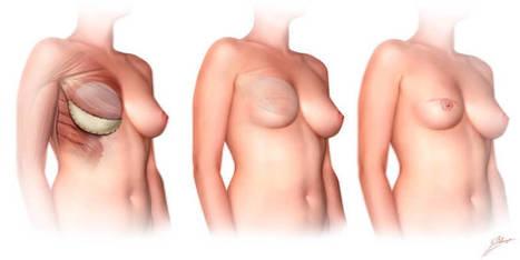 Reconstruction mammaire en tunisie | Prix Pas Cher | Chirurgie Esthétique du Visage | Scoop.it