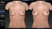 VECTRA XT 3D Imaging | VECTRA XT 3D System Dallas Fort Worth | Plastic Surgery practice of Jon Kurkjian MD | Scoop.it