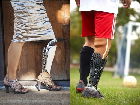 3D Printed Prosthetics Company Bespoke Acquired By 3D Systems | DigitAG& journal | Scoop.it