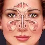 Comment venir à bout d'une sinusite ?   Huiles essentielles HE   Scoop.it