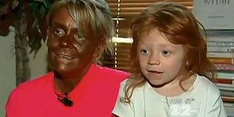 Une Américaine accusée d'infliger des séances de bronzage à sa fille   Intéressant...   Scoop.it
