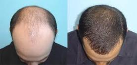 Cosmetic Surgery Center in Vadodara | Hair Transplant Center in Vadodara | Scoop.it