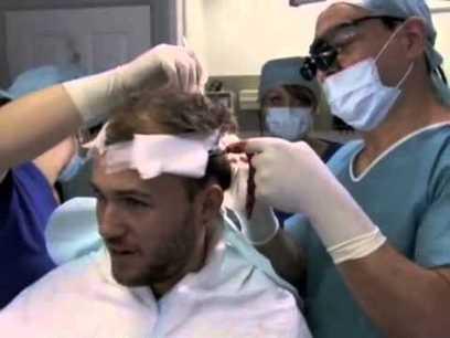 Get Rid Of Baldness With Hair Transplantation | Hair Loss Treatment ... | Hair Transplant in Kolkata | Scoop.it