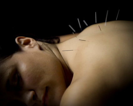 Chicago Acupuncture Treatment | Chicago Med Spa | The Chicago Medspa | Scoop.it