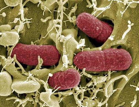 El mapa global de las infecciones | Salud Publica | Scoop.it