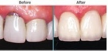 types of dental problems   Dentistry Services   Scoop.it