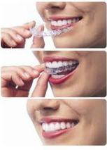 Brea Invisalign Clinics: Your Teeth's Invisible Help | Dentistry : Designed Smiles | Scoop.it