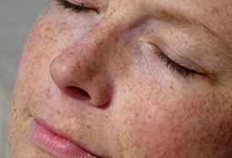 Reasons Your Skin Looks Older - Skincare - Aging Skin - Oprah.com | Skin Care & Beauty Trends & Tips | Scoop.it