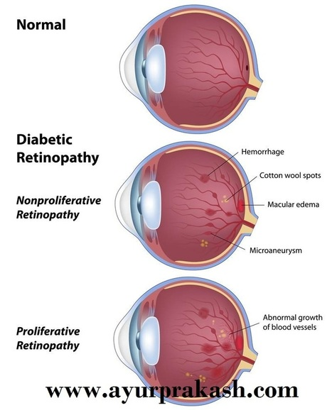 Frequently Asked Questions about Diabetic Retinopathy Eye Disorder | Prakash Nethralaya And Panchkarma Kendra | Scoop.it