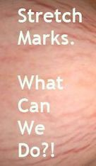 How To Get Rid Of Stretch Marks Fast | Health and Beauty | Scoop.it