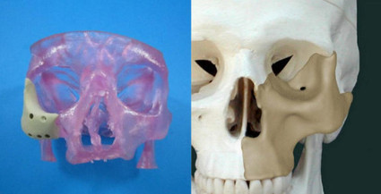 FDA-Approved 3D Printed Face Implant is a First | Amazing Science | Scoop.it