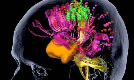 Brain tumors: Mapping of motor areas in the brain by magnetic stimulation | Cognition and Brain diseases | Scoop.it