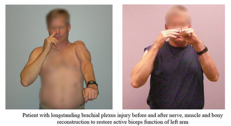 Treatment for Brachial Plexus Injury | Houston Plastic and Craniofacial Surgery | Scoop.it