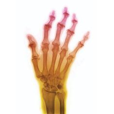 Optical Illusion Relieves Arthritis Pain: Scientific American | The brain and illusions | Scoop.it