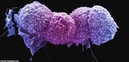 Rare lung cancer treatment discovered in breast cancer drugstest | Billy's year 9 journal | Scoop.it