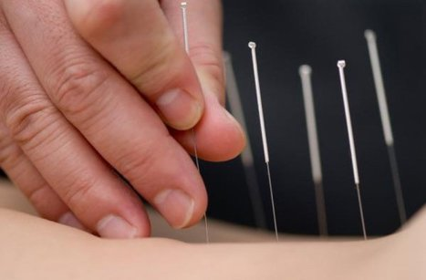 Acupuncture and its Based Theory | Acupuncturist In Morristown, Acupuncture In Morristown | Scoop.it